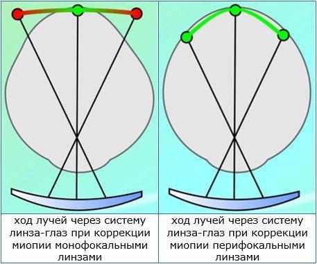 перифокальные линзы для очков