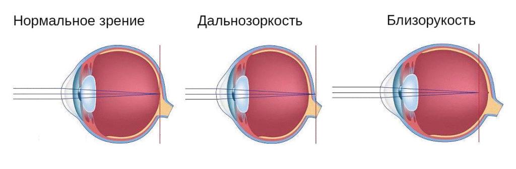кому необходима коррекция корригирующими очками